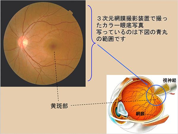 3次元眼底像撮影装置イメージ