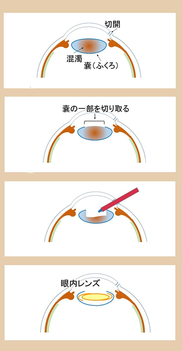 白内障イメージ4