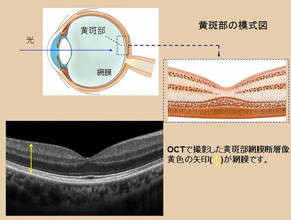 光干渉式網膜断層撮影イメージ