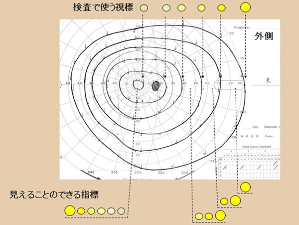 動的量的視野計イメージ
